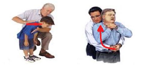 manovre per il bambino percussione della schiena e compressioni addominali