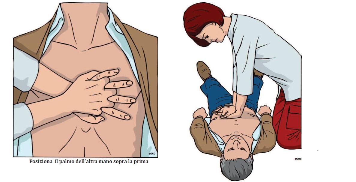 posizione delle mani nel BLS
